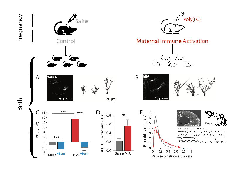 Immune activation during gestation leads to hippocampal neuronal alterations already at birth