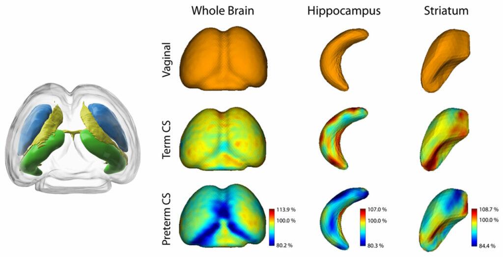 Des volumes cérébraux plus petits après la naissance par césarienne