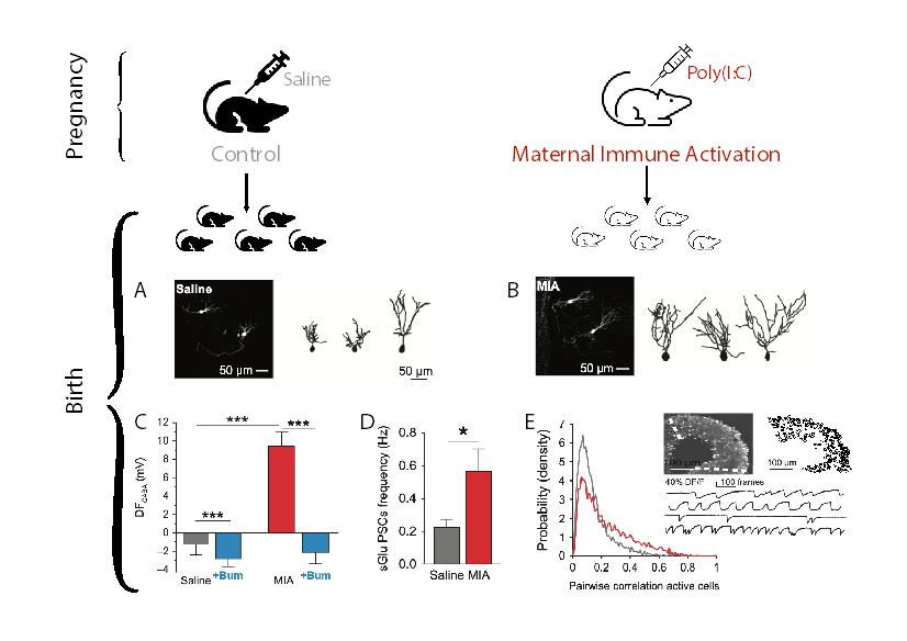 L'activation immunitaire pendant la gestation entraîne des altérations neuronales de l'hippocampe dès la naissance